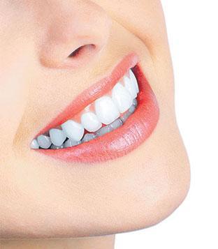 teeth whiten cost